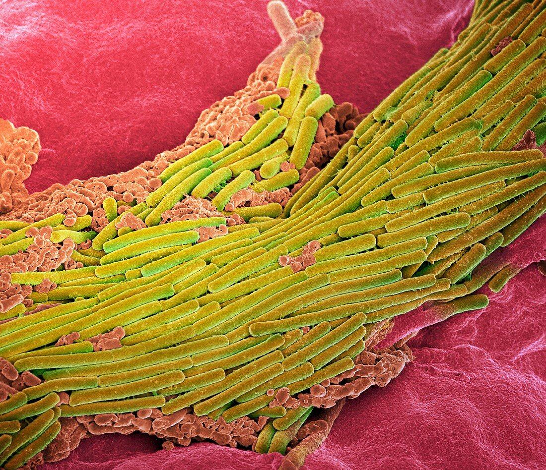 Clostridium difficile bacteria,SEM