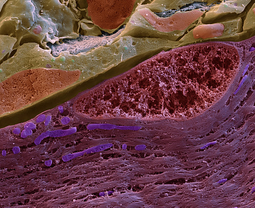 Normal muscle tissue, SEM