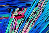 PLM of crystals of estrone