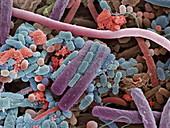 Tongue bacteria,SEM