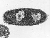 TEM of the bacteria Escherichia coli