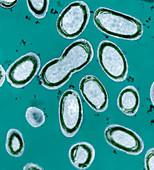 Photosynthetic plankton,TEM