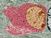 Thyroid parafollicular cell,TEM