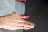 Severed finger,mock-up