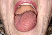 Swollen tongue