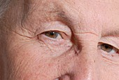 Elderly person's eyes
