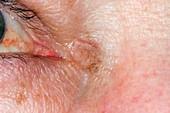 Actinic keratosis near the eye