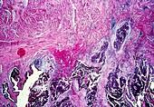 Complicated atheroma,light micrograph