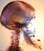 Acromegaly of the skull,X-ray