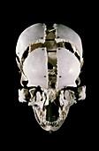 19th century Beauchene 'exploded' skull
