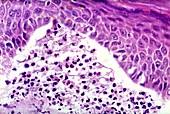 Chronic dermatitis,light micrograph