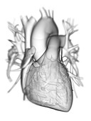 Heart with coronary vessels