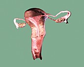 Female reproductive system,artwork