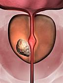 Prostate cancer,artwork