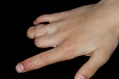Deformed fingers from amniotic bands