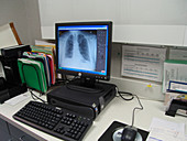 Computer work station in surgeons office