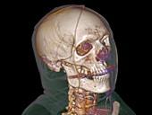 Normal head,3D CT scan