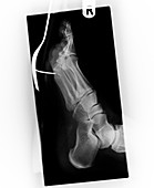 Fork impaled on a person's foot,X-ray