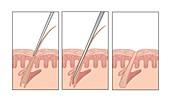 Electrolysis hair removal,artwork