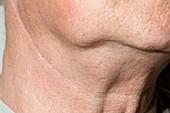 Neck lump in non-Hodgkin's lymphoma