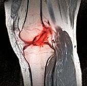 Anterior cruciate ligament tear,CT scan