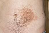 Becker's naevus on the abdomen