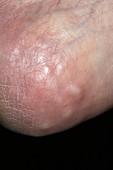 Lesions on heel in aneurysm patient