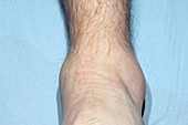 Sprained ankle playing sport