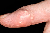Gout tophus on the finger