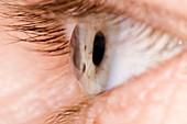 Keratoconus of the eye