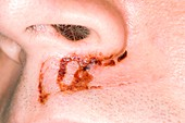 Face injuries after fall from a bike