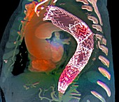 Stent to treat aortic aneurysm,CT scan
