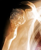 Cancer of the shoulder,X-ray