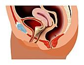 Female pelvic anatomy,artwork