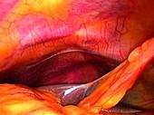 Healthy liver,laparoscopic view