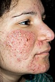 Acne vulgaris on the face in a girl