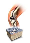 Damaged knee,artwork