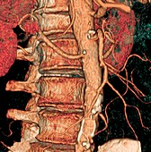 Spine and aorta,3D CT scan