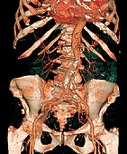 Calcified aortic artery,3D CT scan
