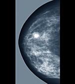 Breast lump,X-ray