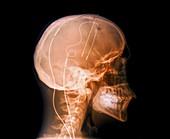 Tourette's treatment,X-ray