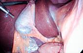 Gallbladder removal surgery