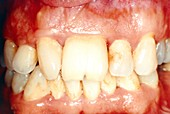 Abnormal incisors