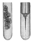 Tuberculosis and cholera,19th century