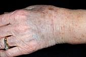 Wrist bruising from broken arm