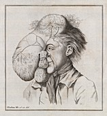 Large tumour of the head,18th century