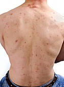 Acne vulgaris on the back