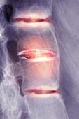Ankylosing spondylitis,X-ray