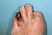 Gangrenous toe in a diabetic