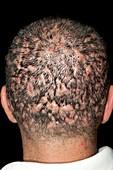 Dissecting folliculitis on the scalp